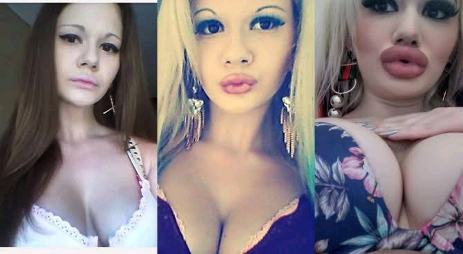 Barbie Doll Wannabe To Add More Filler To Her Voluminous Lips Despite Family Rejection - Vantage News Nigeria